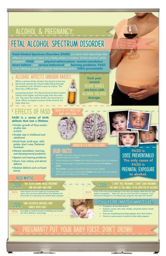 Alcohol & Pregnancy: Fetal Alcohol Spectrum Disorder Tabletop Display
